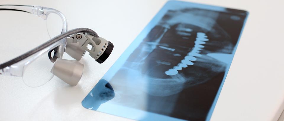 Service der Zahnarztpraxis für Implantologie und Zahnersatz Dr. Witteler & Steinker in Münster