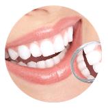 Prophylaxe in unserer Zahnarztpraxis - Dr. Witteler & Partner