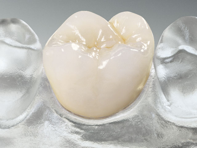 Keramikkrone schließt Zahnlücke